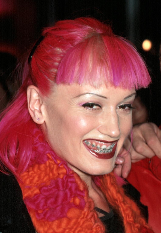 Gwen stefani med tandställning