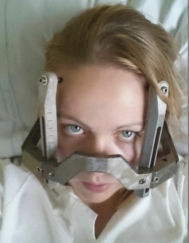 Maja I sjukhussäng efter sin stroke under en graviditet