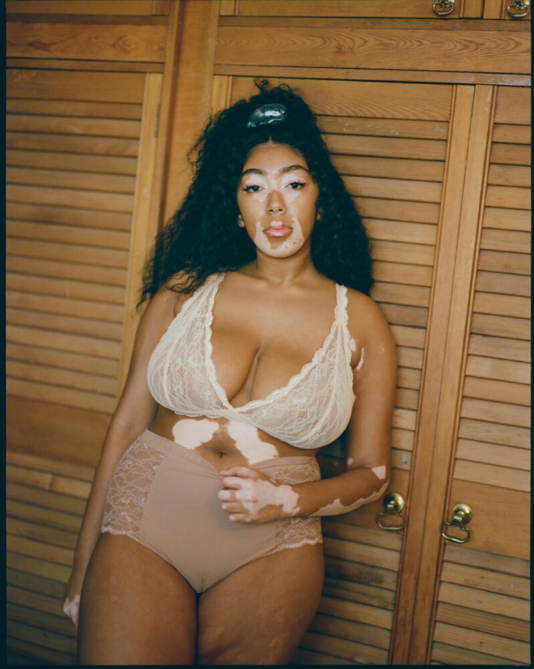 Kurvig kvinna med pigmentförändringar i huden bär Monkis nya underkläder.
